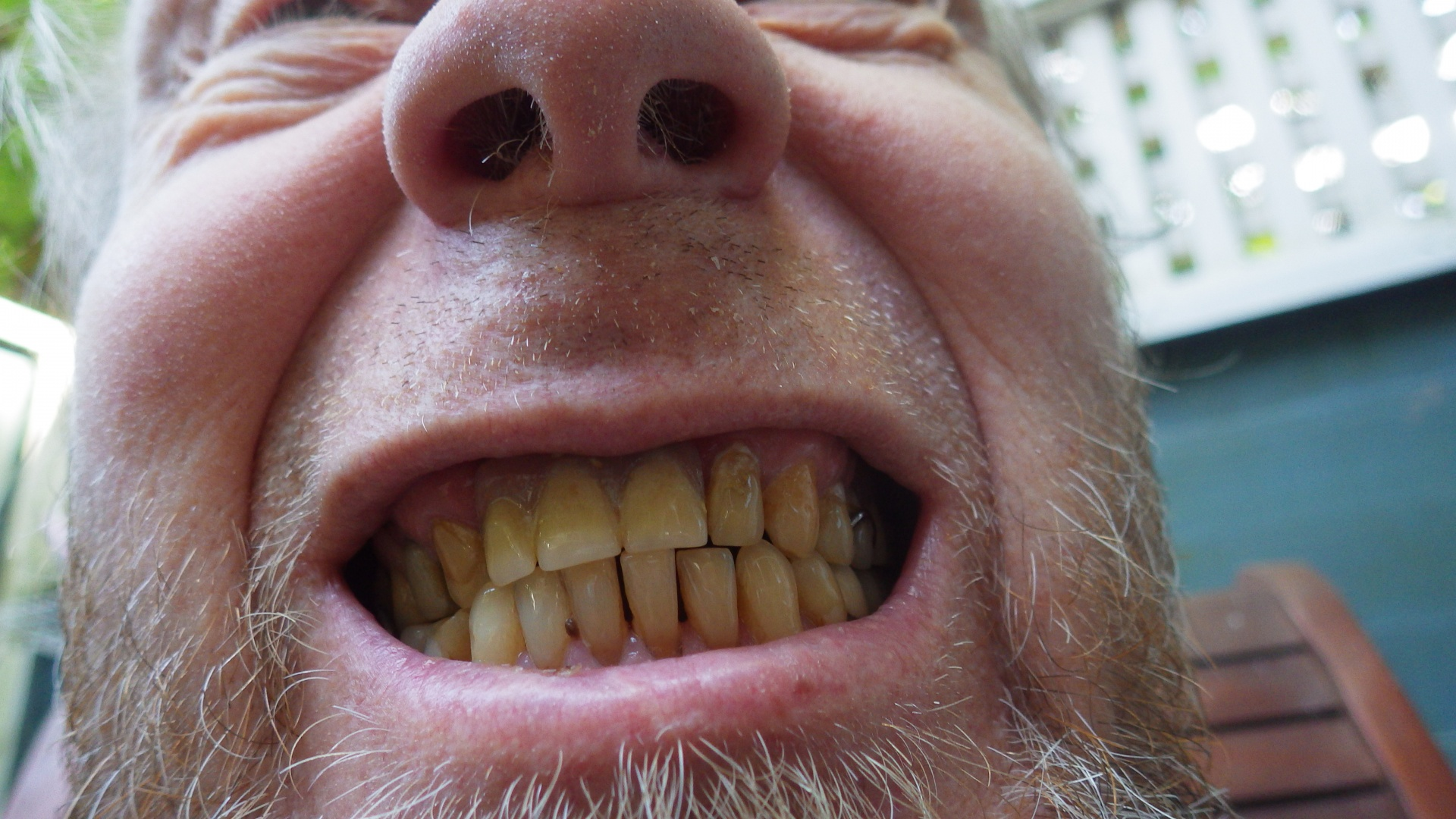 Yellow Teeth and its Causes and Preventive Measures