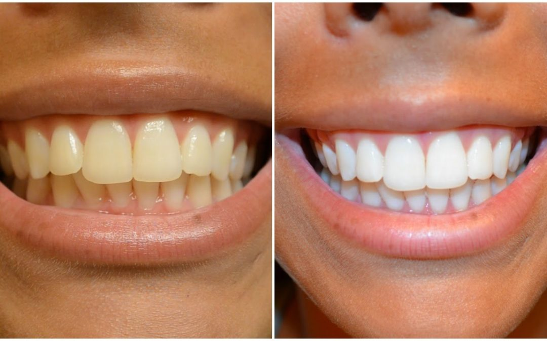 Are Whitening Strips Effective?
