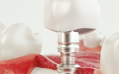 Implants after Bone Graft Healing Stages