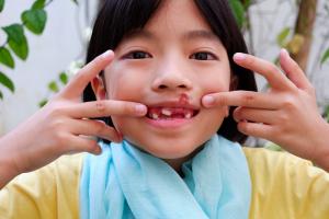 teeth injury
