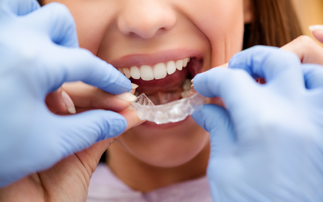 Invisalign Helps You To Achieve Teeth Alignment