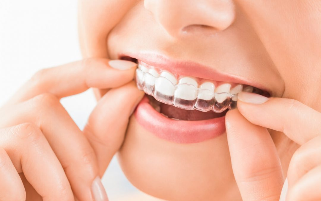 Invisalign Alternative Teeth Straightening