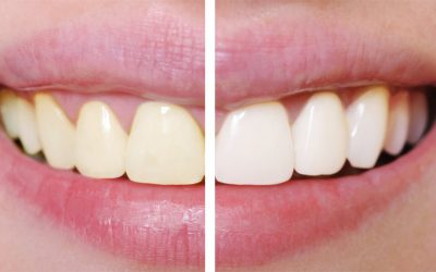 What Is The Average Cost of Teeth Whitening Services