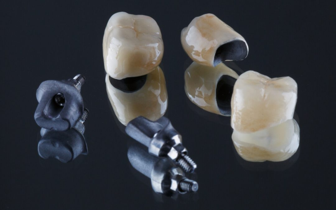 What are the types of dental crown