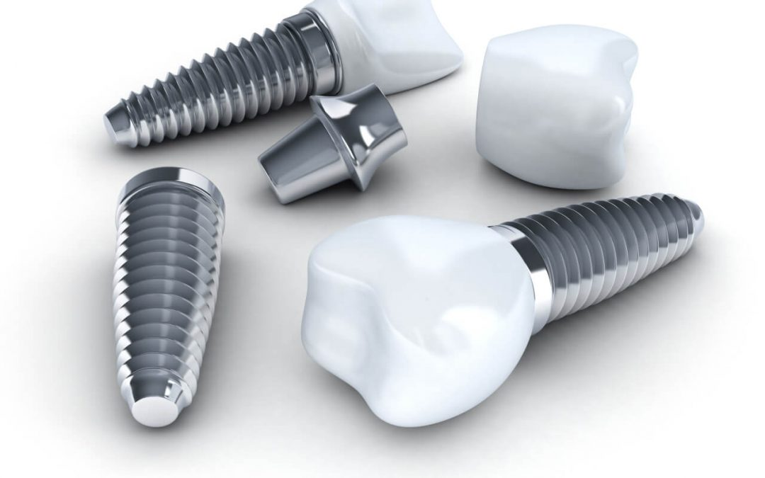 Learning about dental implants problems
