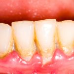 how to dissolve plaque on teeth