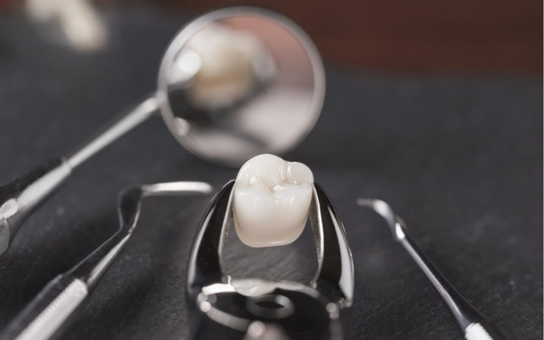 How to Care for a Tooth Extraction