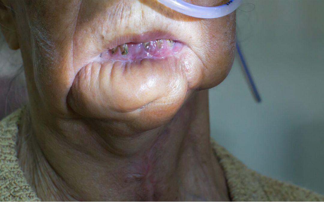Gum Flap Surgery