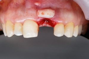 infection of gum after graft
