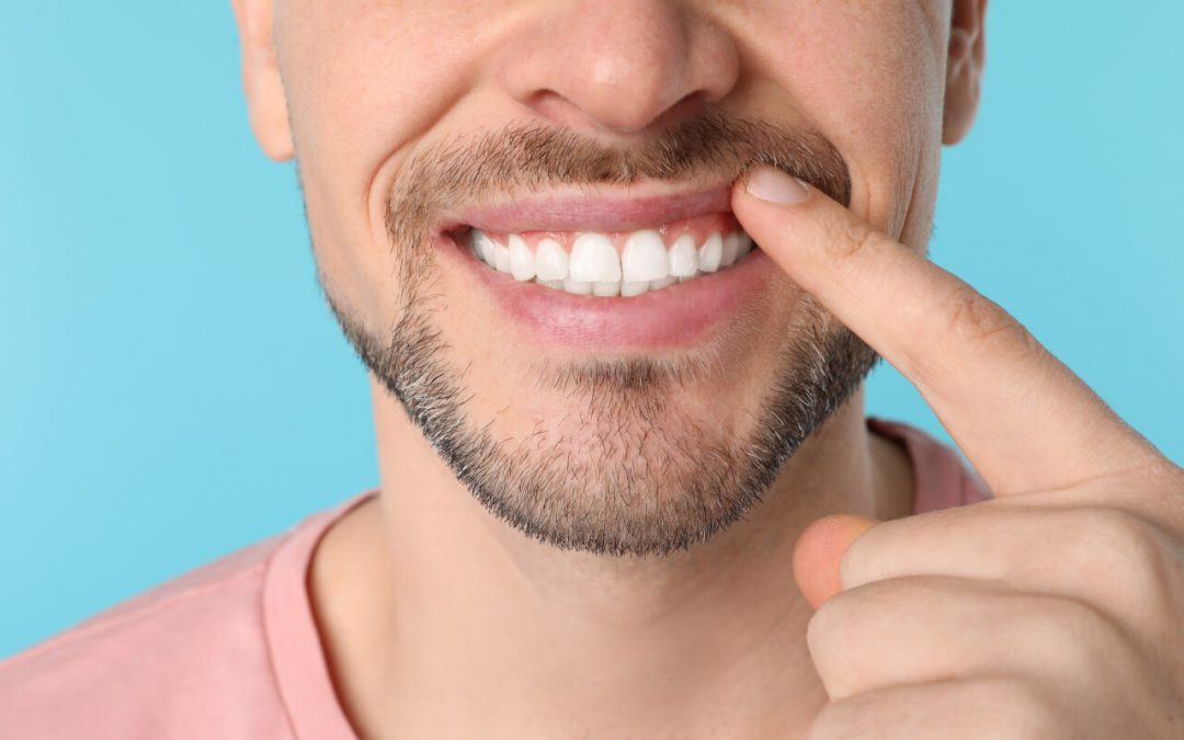 How to straighten tooth enamel
