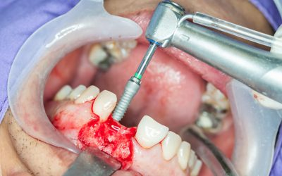 What's the Cost for Dental Bone Graft?
